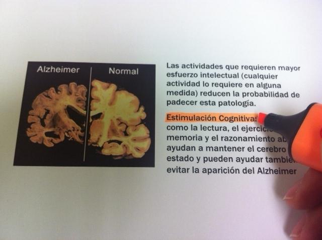 alzheimer_estimulacion-cognitiva