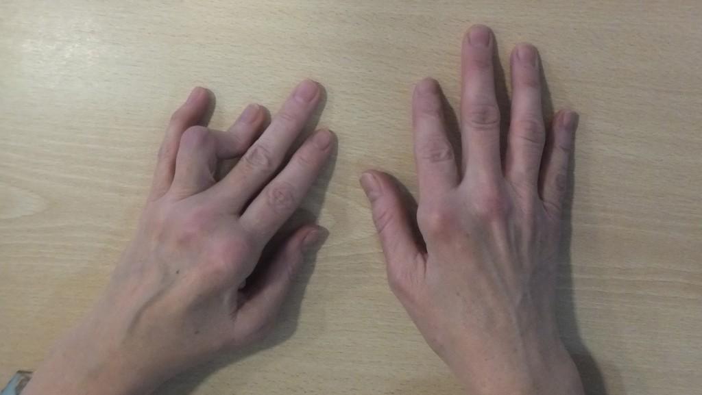 artritis reumatoide paciente keri