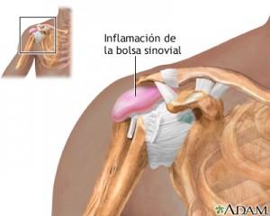 Lesión hombro_Manguito de los rotadores: tendinitis del supraespinoso no traumática