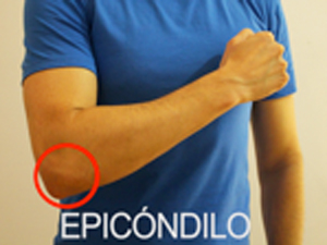 Tratamiento de la epicondilitis con ondas de choque