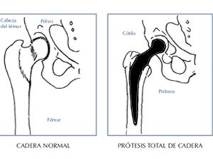 primeros cuidados de una prótesis de cadera