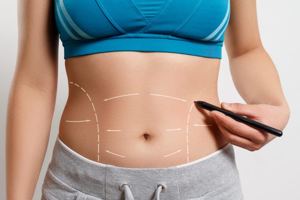 La faja abdominal: protege tu espalda y tu suelo pélvico